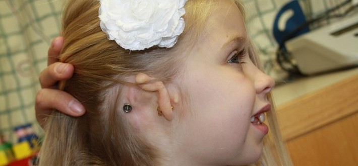 hearing audiology service