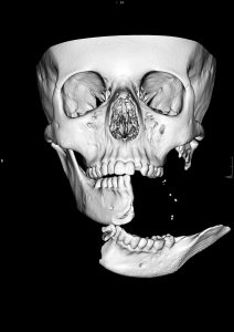 3D CT scan of Emilys jaw before surgery