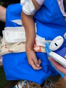 Tyler James' broken arm